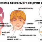 алкогольный синдром у плода лечение