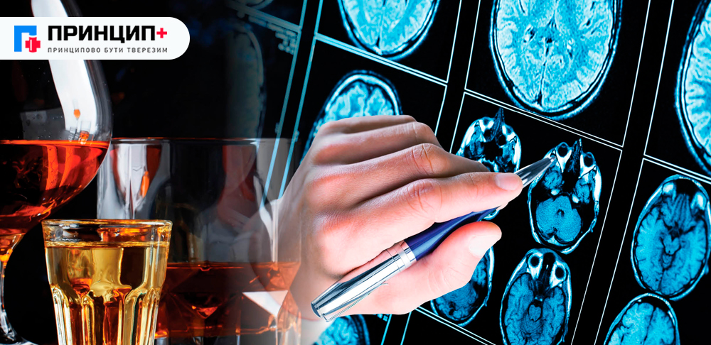 Симптоми алкогольної епілепсії